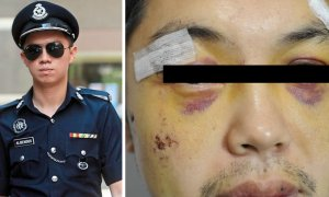Man Lodges Police Report After Being Assaulted, Finds Out They Were Actually Cops! - World Of Buzz