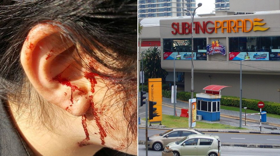 Taxi Driver Robs and Injures Woman Near Subang Parade - World Of Buzz 3