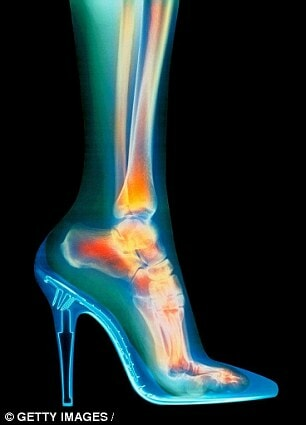 Wearing High Heels Too Often Increases Risk of Cancer Specialists Warn - World Of Buzz 1
