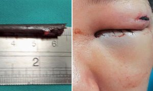 Boy Narrowly Escapes Blindness After Freak Accident Lodges Chopstick In Eye Cavity - World Of Buzz 2