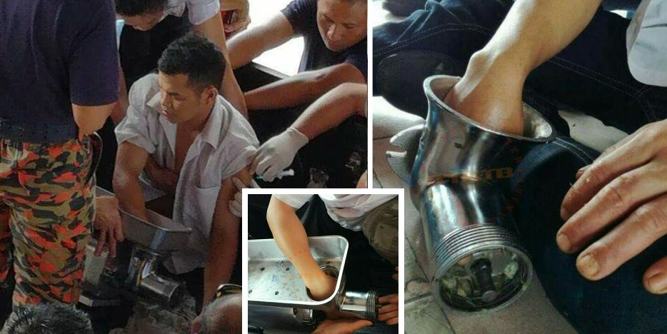 Malaysian Male Accidentally Gets Hands Stuck In Meat Grinder, Seeks Help By Himself - World Of Buzz 1