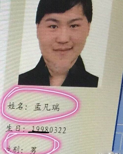 Chinese 'Girl' Undergoes Intense Plastic Surgery, Claims Herself To Be Beautiful - World Of Buzz