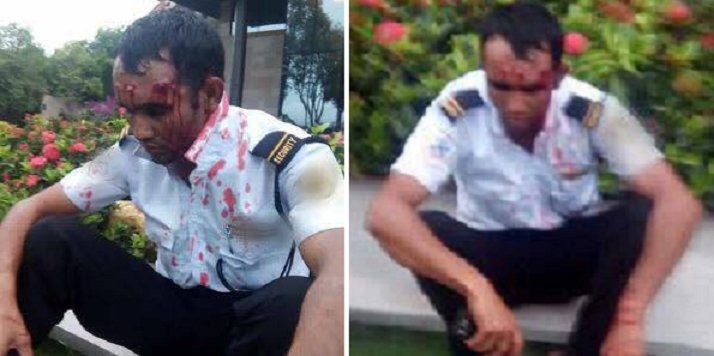 Husband Bashes Security Guard Bloody After He Tried To Molest Wife - World Of Buzz 4