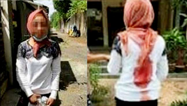 Indonesian Maid Brutally Abused by Malaysian Employer - World Of Buzz 1