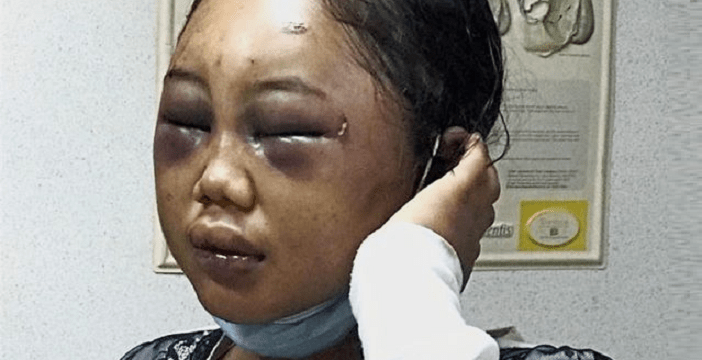 Indonesian Maid Brutally Abused by Malaysian Employer - World Of Buzz 3
