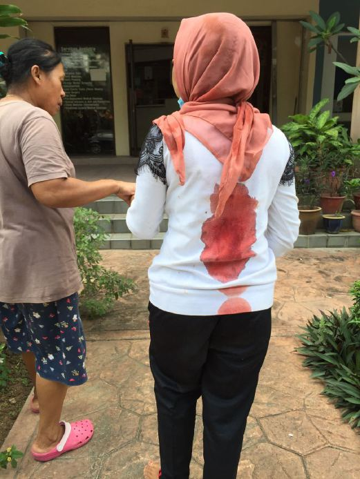 Indonesian Maid Brutally Abused by Malaysian Employer - World Of Buzz