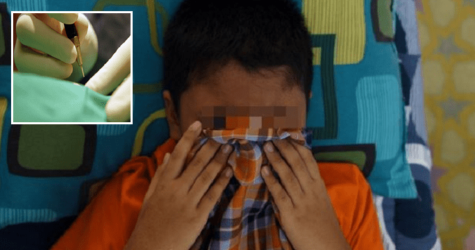 Malaysian Doctor Accidentally Sliced Off Boy's Penis Head During Circumcision - World Of Buzz 5