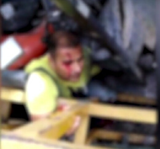 Worker's Leg Pinned Under Debris, Forced To Amputate On Scene To Keep His Life - World Of Buzz