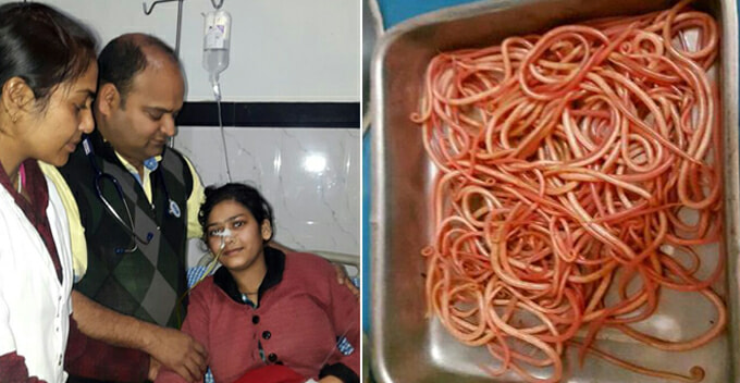150 Wriggling Worms Removed From Lady's Stomach After Consuming Unhygienic Food That Contains Worm Eggs - World Of Buzz 3