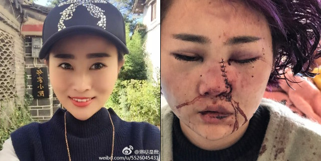 China Police Accused Of Covering Up Brutal Tourist Attack!? - World Of Buzz