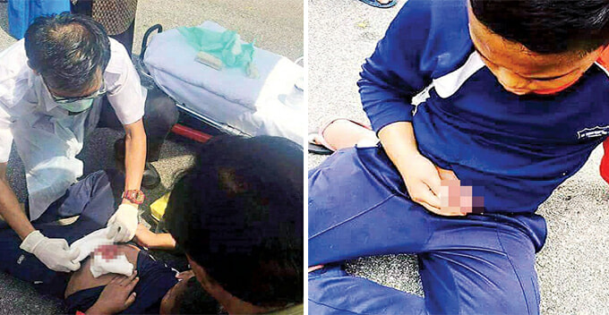 Malaysian Boy's Small Intestines Exposed After Stomach Penetrated By Bicycle Handle - World Of Buzz 2