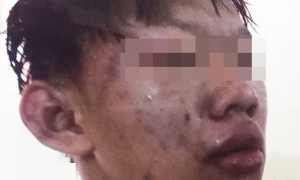 Student brutally beaten by gangsters for refusing gang invitation. - World Of Buzz 6