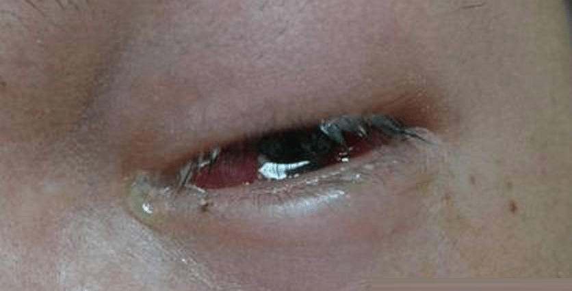 Severe Eye Infection Caused 3 Taiwanese To Nearly Lose Their Eyesight - World Of Buzz 1