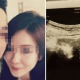 S'porean Girl Aborts Baby For Boyfriend, But He Blamed Her Having To Pay The Abortion Fee - World Of Buzz 1