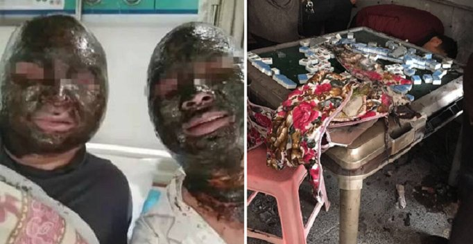 Four Chinese Men's Burn Injuries Turned Their Faces Black in Mahjong Table Explosion - World Of Buzz 5