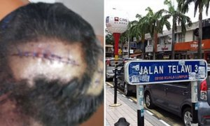 Malaysian Policemen Gets Beaten Up by Gang Members in Bangsar, Suspects Arrested - World Of Buzz 3