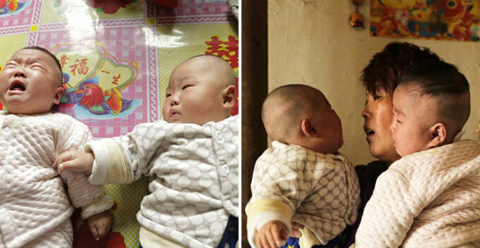 Heartbreaking Moment Poor Chinese Parents Let Twin Brother Baby Draw Lots for Heart Operation - World Of Buzz