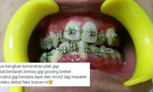 Malaysian Dentist Shocked to Find His Patient Wearing Fake Braces - World Of Buzz