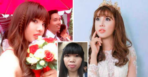 Ugly Vietnamese Lady Deemed Undesirable Transforms into Gorgeous Lady and Found Rich Husband - World Of Buzz 2