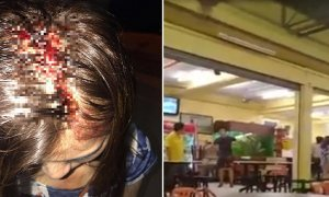 Malaysian Girl Accuses Restaurant Owner of Injuring Her Head, But Here's the Twist - World Of Buzz 5