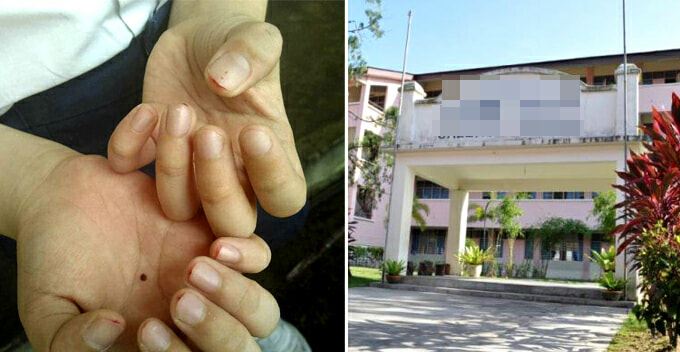 Standard 2 Pupil's Fingers Bleed After Finger Nails Clipped by Impatient Teacher As Punishment - World Of Buzz