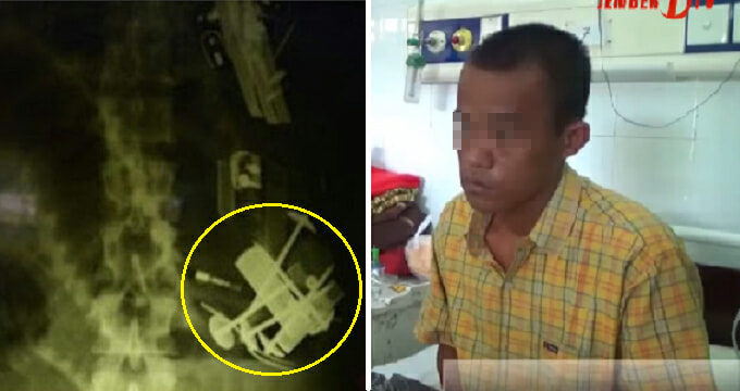 Doctors Found 52 Foreign Objects in Indonesian Man's Stomach, 18 were lighters - World Of Buzz