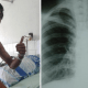 Indonesian Man Suffers Collapsed Lung Due to Smoking, Netizens Vow to Quit - World Of Buzz