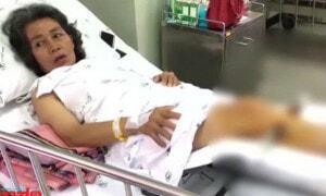 Woman Gets Broken Leg from Thai Massage, Masseur Gives 50 Percent Discount - World Of Buzz