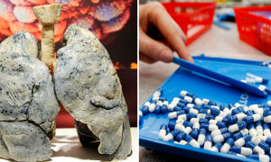 Man's Lungs Turn Into Cotton-Like After Excessive Consumption of Antibiotics - World Of Buzz