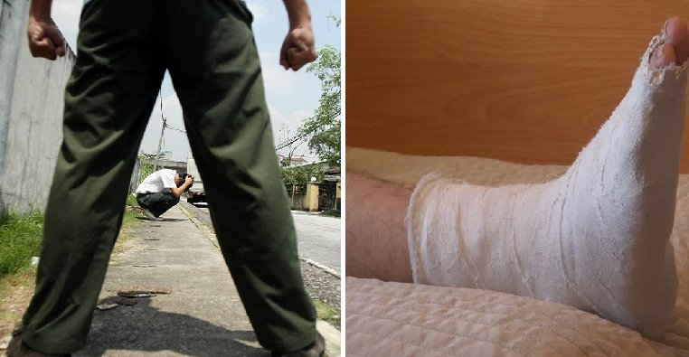M'sian Student Breaks Classmate's Leg After Getting Angry Over Offensive Jokes - World Of Buzz 1