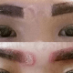 Singapore Lady Goes for Eyebrow Embroidery, Gets Scars from Procedure - World Of Buzz 8