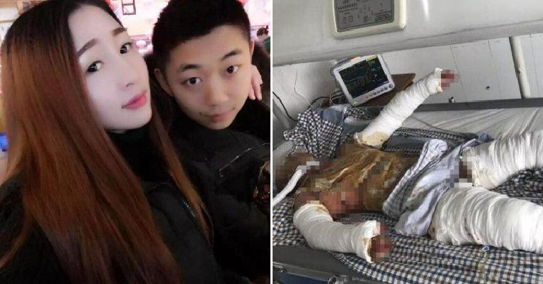 Devoted Gf Shows What True Love Is By Staying By Bf's Side Despite 90% Burns - World Of Buzz