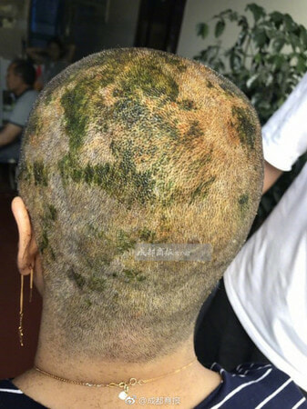 Woman Suffers Burns on Scalp and Forced to Go Bald After Dyeing Hair in Salon - World Of Buzz 2