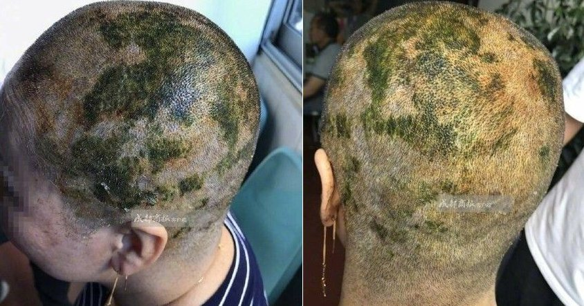 Woman Suffers Burns on Scalp and Forced to Go Bald After Dyeing Hair in Salon - World Of Buzz 3