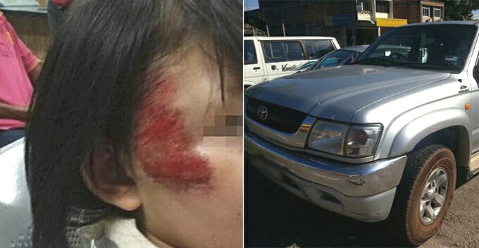 Brave M'sian Boy Fights With Carjacker After His 2 Sisters Jump Off The Moving Truck - World Of Buzz
