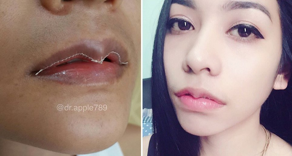 Goodbye Kylie Jenner Lips, Asian People are Now Getting Lip Reduction Surgeries - WORLD OF BUZZ