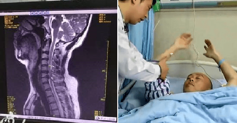 Man Suffers from Paralysis After Lying Down on Bed to Play with Phone Every Day - WORLD OF BUZZ 2