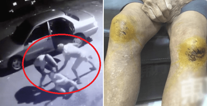 Three Elderly Folks Brutally Beaten Up and Robbed When Going For Morning Walk - WORLD OF BUZZ 3