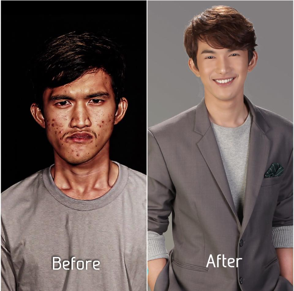 'Ugly' Thai Man Goes Through Plastic Surgery, Mother Couldn't Even Recognise Him - WORLD OF BUZZ 4