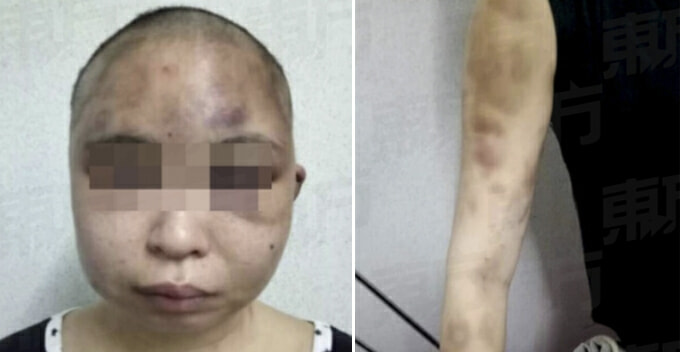 Wife's Head Shaved And Bashed After Husband Suspected Her For Having An Affair - World Of Buzz