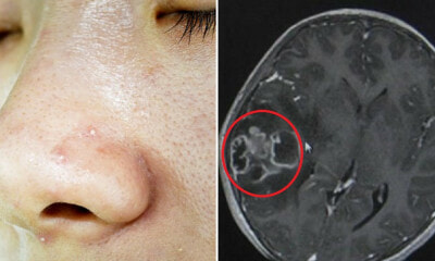 10yo Girl Needed Part of Her Skull Removed After Mother Squeezed Out Her Blackheads with Unclean Hands - WORLD OF BUZZ 8