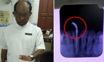 Lady Gets Braces at Ampang Clinic, Ends Up with Horrible Infection and Damaged Roots - WORLD OF BUZZ