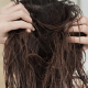 Woman Suffers from Facial Paralysis From Habitually Sleeping with Wet Hair - WORLD OF BUZZ 3