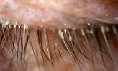 Woman Uses Unwashed Pillow Case for 5 Years, Contracts Over 100 Mites in Her Eyelashes - WORLD OF BUZZ