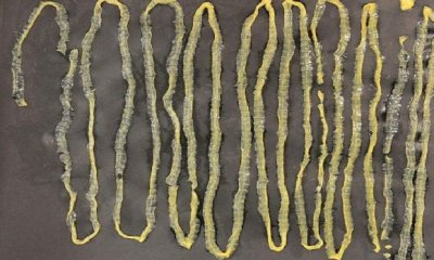 Man Passes Out 2.8M-Long Tapeworm from Rectum, Had Absolutely No Idea It Was Inside - WORLD OF BUZZ 2