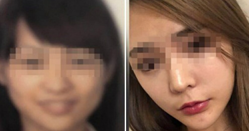 Woman Misses Flight After Security Scanner Couldn't Recognise Her Post-Plastic Surgery Face - WORLD OF BUZZ 1
