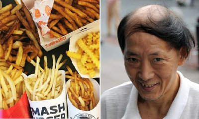 Fast Food Chains' French Fries May Cure Baldness, Study Shows - WORLD OF BUZZ 4