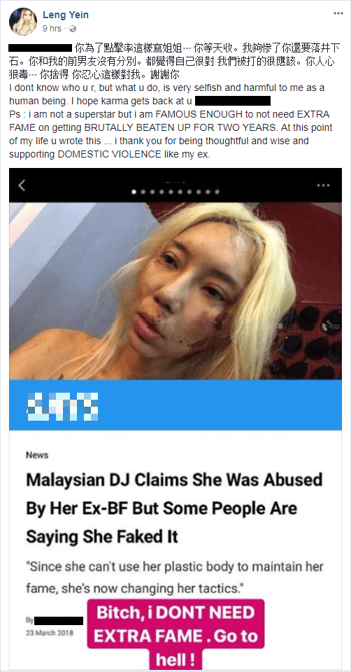 Famous M'sian DJ Bravely Breaks Silence Against Domestic Violence But Haters Still Thinks It's Fake - WORLD OF BUZZ