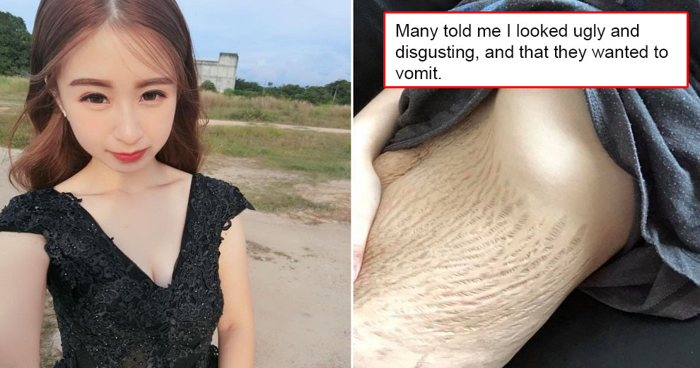M'sian Mother of Quadruplets Attacked by Netizens After Sharing a Photo of Her Stretchmarks - WORLD OF BUZZ 4