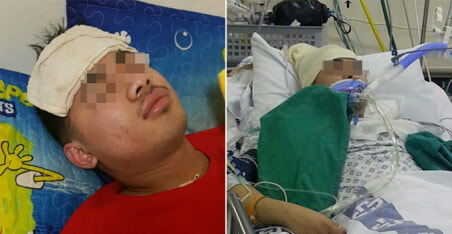 Healthy Young Man Suffered From Headache and Fever, Died After Two Weeks - WORLD OF BUZZ